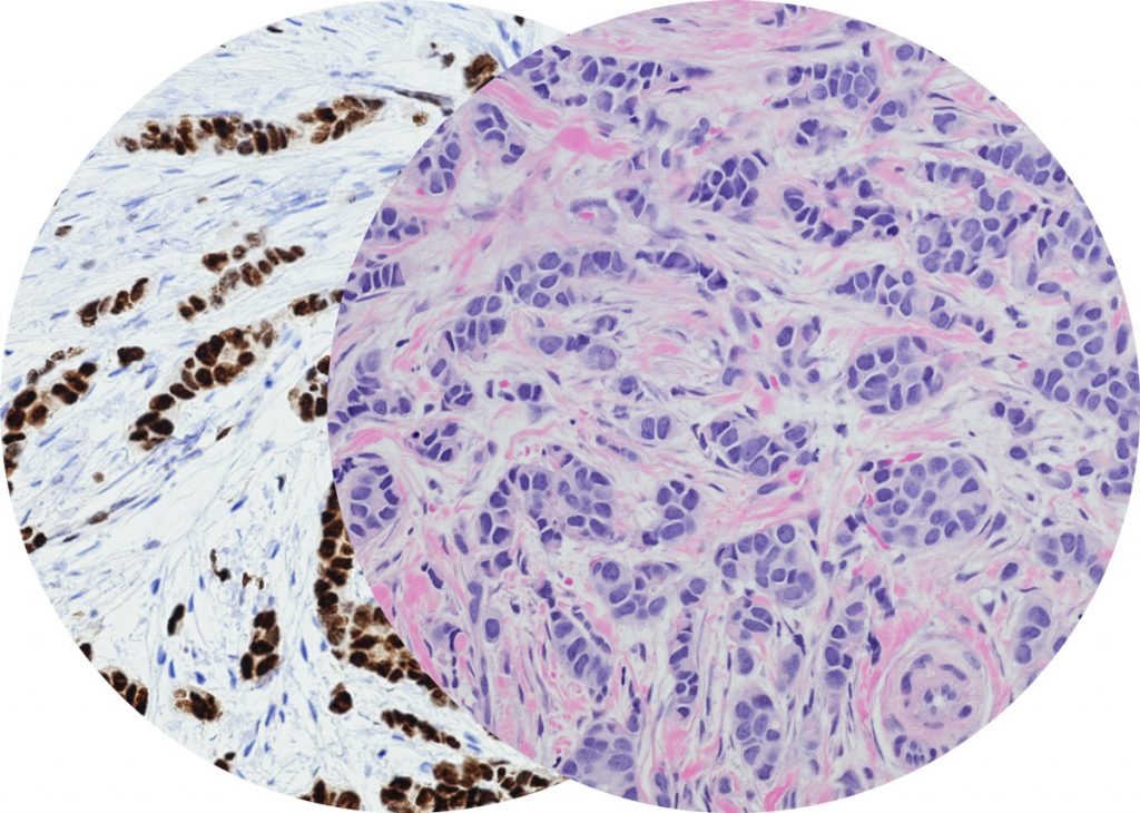 Routine Hematoxylin-Eosin stain (H&E) stain